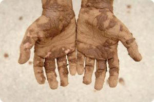 dirty poor hands out